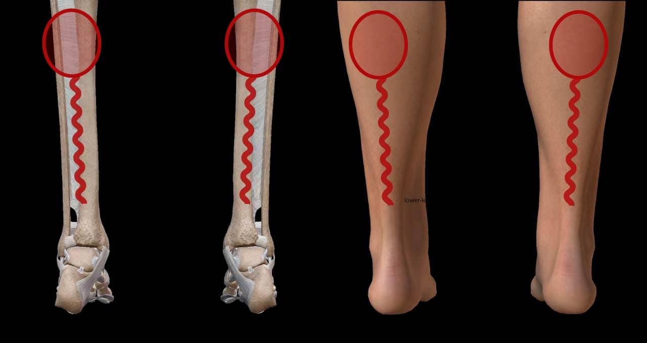 運動中に内側の痛み